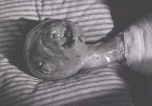 eraserhead6