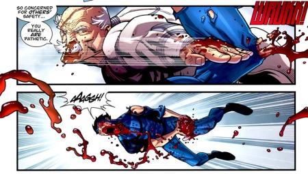 Just a flesh wound, folks.